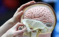 Ученые нашли средство от опасных болезней мозга