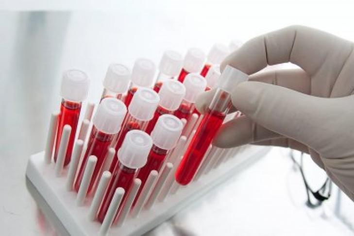 В КНР научились определять группу крови задве мин.