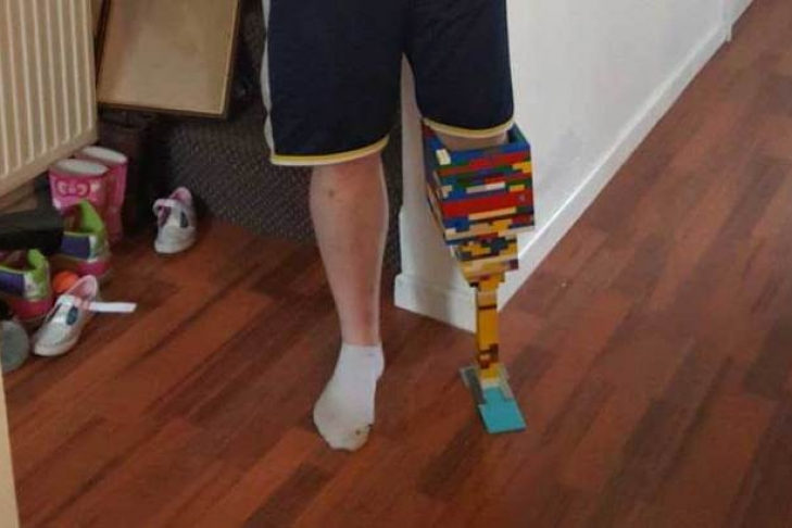 Гражданин Англии сконструировал протез ноги изLego