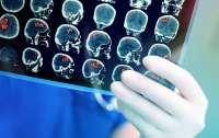 Лекарство от онкологии показало феноменальный результат