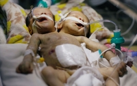 Двухголовые сиамские близнецы родились в Йемене