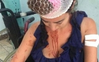 В Хорватии уборщица избила туристку металлическим прутом