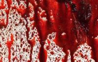 В Киеве женщина ударила ножницами врача скорой помощи