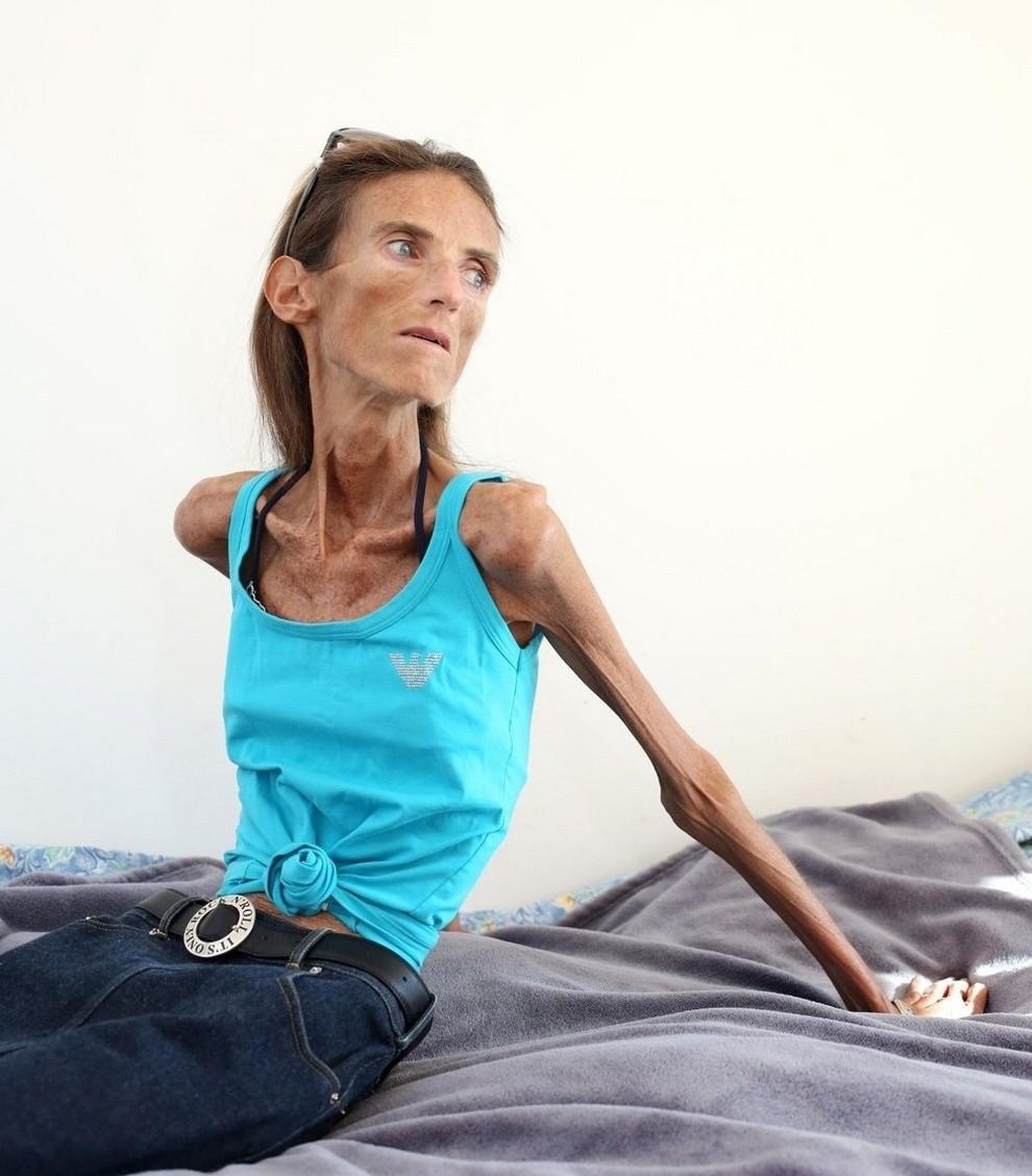 Фото самых худеньких женщин 2 фотография