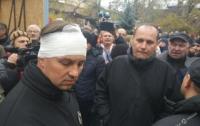 Потасовка в горсаду Одессы: радикалы могут иметь отношение к Kadorr
