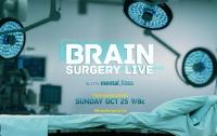National Geographic в прямом эфире впервые покажет операцию на мозге