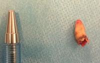 У датчанина в носу вырос зуб