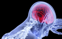 Рак мозга: названы главные симптомы