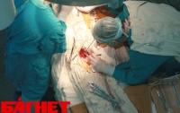 Хирург, оставивший в животе пациента ножницы, стал главврачом