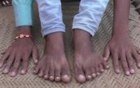 В Индии шестипалого мальчика хотят принести в жертву