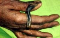 Женщина пять лет растила на пальце огромный рог