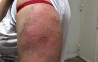 Пьяные полицейские избивали в метро женщин (фото)