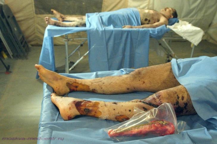 фото мертвых людей в морге